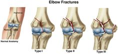 Did you know there are 3 types of bone fractures? Learn more about each type and how a physical therapist can help you avoid this injury. Physical Therapy Exercises, Physical Therapist, Human Skeleton Bones, Types Of Fractures, Types Of Bones, University Of Manitoba, Bone Fracture, Hand Therapy, Bone And Joint