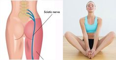 Sciatica begins with discomfort and light pain in lumbosacral area, fatigue and ache in the legs. Gradually, the pain increases, and it can spread all over the posterior surface of the whole leg. Sciatica can be crippling when untreated.