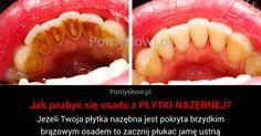 Zęby - Jak pozbyć się osadu z PŁYTKI NAZĘBNEJ?