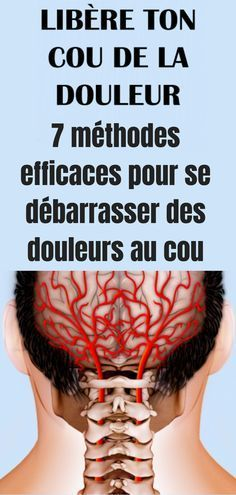 7 efficient strategies to eliminate neck ache Herbal Remedies, Natural Remedies, Qi Gong, Varicose Veins, Pilates Workout, Reflexology, Neck Pain, Migraine, Herbal Medicine
