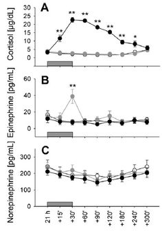 Cortisol and epinephrine infusion mimics nadir-to-peak  concentration difference in circadian rhythm. Cortisol, Biology, Sleep, Chart, Life, Ap Biology
