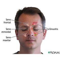 Los descongestivos nasales no son del todo recomendables, pues al utilizarlos más de cinco días provocan rinitis de rebote en el paciente, complicando el tratamiento médico que puede llevar a cirugía.
