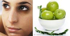 Indian Gooseberry For Eye Dark Circles & Dark Skin Spots
