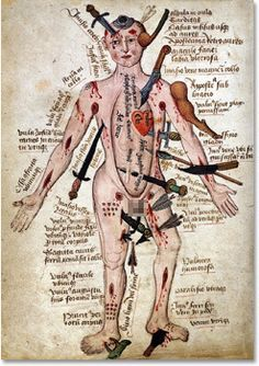 """Injury Man"" http://www.cracked.com/blog/5-artifacts-that-will-shatter-your-image-middle-ages/#"