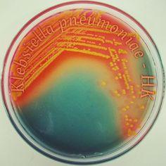 Klebsiella pneumoniae - Hektoen Agar