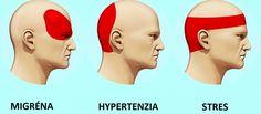 Bolesť hlavy z času na čas postihne každého z nás, hoci určitá časť populácie trpí aj nepríjemnými migrénami. Ak však nechcete bolesť hlavy riešiť tabletkami, skúste neškodný, ale účinný spôsob úľavy. Migraine Pain, Migraine Relief, Pain Relief, Stress Relief, Acupuncture, Getting Rid Of Migraines, Autogenic Training, Pressure Points For Headaches, Headache Relief Pressure Points