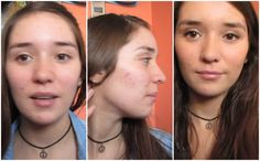 Make up for acne / acne scars .