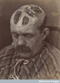 Syphilis, 1894.