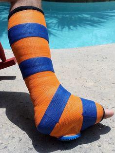 Short leg fiberglass walking cast.  A fiberglass walking cast with a heel is better than the cam boot.  See Why?