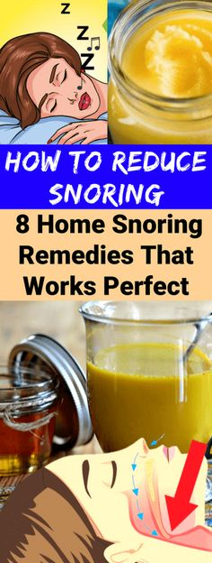 Insomnia Remedies How To Reduce Snoring. Home Snoring Remedies That Works Perfect! Cure For Sleep Apnea, Sleep Apnea Remedies, Insomnia Remedies, Home Remedies For Snoring, Snoring Solutions, Reduce Cellulite, Health Problems, Health Remedies, Healthy Tips