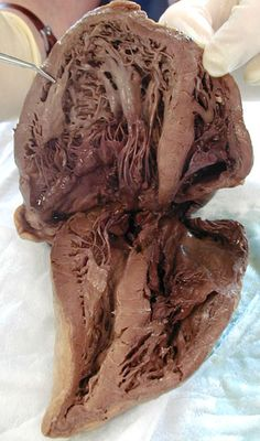 Human heart dissection