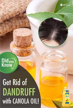 #CanolaInNews  Get Rid of Dandruff with Canola Oil  You get rid of dandruff very well – canola oil with peppermint oil. Peppermint will make your hair fresh and your dandruff will be treated shortly with this hair mask.  The instruction is:  You get for 5 drops of peppermint oil and 4 tablespoons of canola oil.  Mix those ingredients together and warm it by placing the mixture over a bowel of hot water.  Apply the mask on scalp and massage it for 10 minutes.  Cover your head with a soft…