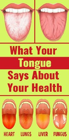 Open your mouth and look at your tongue. That may sound strange, but your tongue can tell a lot about your health. For example, a black and hairy looking tongue … Thyroid Problems, Medical Problems, Medicine Book, Herbal Medicine, Natural Medicine, Chinese Medicine, Medicine Doctor, Holistic Medicine, Holistic Healing