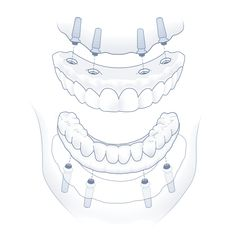 Nuvia Dental Implant Center - Dental Implant Options Dental Implant Surgery, Implant Dentistry, Dental Surgery, Cosmetic Dentistry, Diy Home Cleaning, Teeth Cleaning, Dental Games, Infected Ingrown Hair, Restorative Dentistry