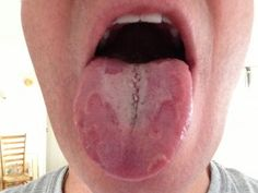Foods to avoid with geographic tongue