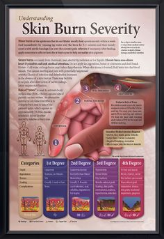 Hang this on your wall for emergencies. Skin Burn Severity Enlarged anatomy poster depicts new skin burn classifications and Rule of Nines for burn trauma centers, EMT/EMS and paramedic schools. Dermatology chart for doctors and nurses.