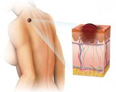 Cuáles son los síntomas del cáncer de piel.- La piel es el órgano más grande del cuerpo, expuesto constantemente a los embates del clima y el sol, por este motivo el cáncer de piel es uno de los tipos de cáncer más comunes. Esta condición si es detectada a tiempo cuenta con un buen pronóstico de recuperación, por ello resulta importante aprender a identificar aquellas señales en nuestra dermis que podrían evidenciar algún peligro. Por eso, en unComo.com te explicamos cuáles son los síntomas…