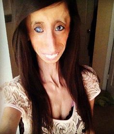"""Lizzie Velasquez: Voted Most Inspirational Story of 2012 When she was in high school, Lizzie Velasquez was dubbed """"The World's Ugliest Woman"""" in an Adipose Tissue, Scary Faces, Other People, Beautiful People, Amazing People, Beautiful Person, Amazing Things, Being Ugly, Your Hair"""