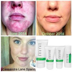 Suffer from Rosacea? Or red irritable skin? Rodan and Fields soothe regimen will work magic on your skin!