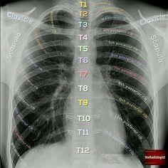 Medical Facts, Medical Science, Schul Survival Kits, Radiology Student, Anatomy Bones, Medical Anatomy, Human Anatomy And Physiology, Medical Terminology, Nursing School Notes