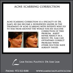 Acne Scarring Correction is a specialty of Dr. Lam's, he has become a worldwide leader in the treatment of acne scarring. Acne Scarring Correction procedures are performed by Dr Lam personally, at his Cosmetic Surgery center in Dallas, Texas. Weight Loss Plans, Weight Loss Tips, Facial Cosmetic Surgery, Skin Resurfacing, Surgery Center, How To Treat Acne, Dallas Texas, Acne Scars, Acne Treatment