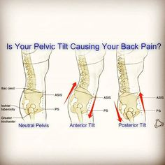 If your #pelvis is stuck in an Anterior or Posterior Tilt... It may be the cause of your #Back #Pain  An Anterior Pelvic Tilt is when the front of your pelvis drops down ⏬ and the back of the pelvis comes up ⏫and this creates an increased curve in your low back . A Posterior Pelvic Tilt is when the back of the pelvis comes down and tucks under and the front of the pelvis comes up creating a flat spine in the lo...