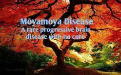 Google Moyamoya