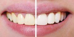 Ben jij ook weleens jaloers op die mooie stralende witte tanden van filmsterren en wil je het liefst ook een mooie Hollywood-smile? Je kan dan natuurlijk een behandeling onder gaan
