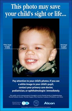 Notice a white pupil in your child's eyes? How to spot Retinoblastoma #LoveYourEyes
