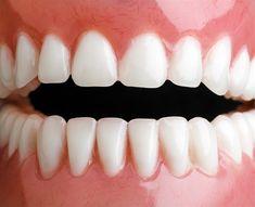 Zbavte se zubního kamene doma - Strana 2 z 2 - Příroda je lék Health Advice, Organic Beauty, Natural Health, Health And Beauty, Teeth, Diy And Crafts, Beauty Hacks, Beauty Tips, Health Fitness