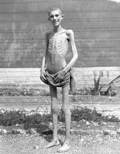 A Survivor of slave labor at the Ebensee Concentration Camp, Austria, liberated by U.S. Army troops in May 1945.