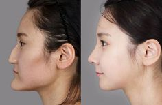 Beauty is pain: A journey through one South Korean woman's plastic surgery 【Photos】