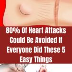 Of Heart Attacks Could Be Avoided If Everyone Did These 5 Easy Things Foods For Hair Loss, Causes Of Heart Disease, Thigh Muscles, Skin To Skin, Thyroid Problems, Natural Health Remedies, Neck Pain, Heart Attack, How Are You Feeling