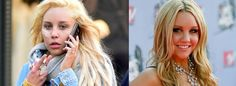 Shocking Before & After Photos Of Celebrities With Drug & Alcohol Problems