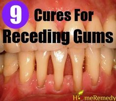 9 Natural Cures For Receding Gums