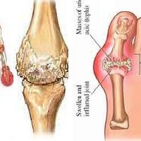 gout relief at walgreens how to use baking soda to lower uric acid gouty arthritis exercise