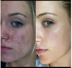 "UNBLEMISH with Rachel Dixon: ""This is my transformation after using Rodan + Fields Unblemish. This is very hard for me to do considering I used to hate how my skin looked... I used every prescription my dermatologist could give me until the final result was Acutane. When that didn't work I was thinking nothing else would. I heard about Unblemish and decided to try it, after using if for 3 months my skin cleared up instantly! I am amazed by how well this stuff works!"