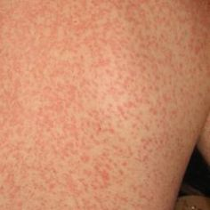 Skin rash: 68 pictures, causes, and treatments Common Skin Rashes, Itchy Skin Rash, Makeup For Older Women, Urticaria, Contact Dermatitis, Viral Infection, A Team