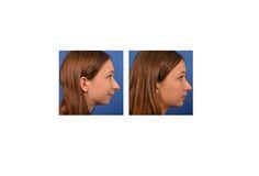 Center For Advanced Facial Plastic Surgery 9401 Wilshire Blvd #650 Beverly Hills, CA 90212 (888) 573-8297  http://www.facialplastics.info/