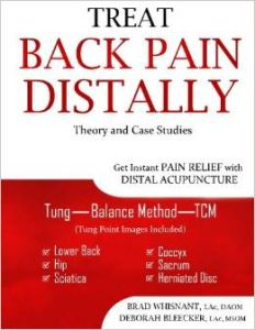 Treat Back Pain Distally: Get Instant Pain Relief with Distal Acupuncture | Vanessa Kings' Books