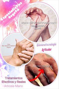 Artrosis en manos. Tratamientos efectivos y seguros en todas las edades . Visítenos en la Clínica de Artrosis y Osteoporosis www.clinicaartrosis.com PBX: 6836020 en Bogotá - Colombia.