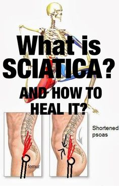 Sciatica - Causes & Treatment