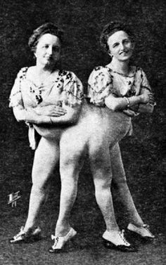 Josefa and Rosa Blažek, conjoined (pygopagus, to be exact) twin sisters and famous sideshow attractions of the and early Creepy Old Photos, Creepy Pictures, Old Circus, Vintage Circus, Sideshow Freaks, Conjoined Twins, Human Oddities, Creepy Vintage, Weird And Wonderful