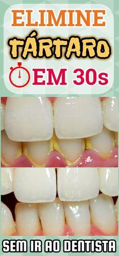 Pin on Skin care Teeth Care, Skin Care, Diy Beauty, Beauty Hacks, Keto Diet For Beginners, Natural Medicine, Aloe Vera, Body Care, Healthy Life
