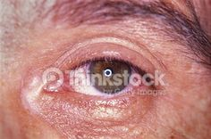 Search for Stock Photos of Eye Ailments on Thinkstock