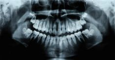 Scientists Have Discovered a Drug That Fixes Cavities and Regrows Teeth