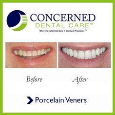 #BeforeandAfter #PorcelainVeners  #dentistry #dentist #teeth #smile #whiteteeth #smile #perfectsmile