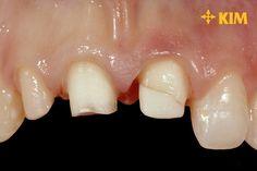 4 cách chữa răng thưa nhanh – đẹp – rẻ - bảo tồn răng tối đa hiện nay