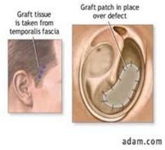 Műtétek - tympanoplastica