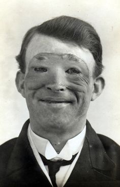 facial reconstruction (first recorded plastic surgery)